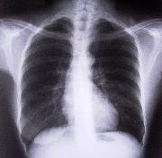 Przewlekła Obturacyjna Choroba Płuc (POChP) -portal medyczny