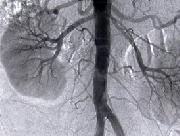 Pierwotne i wtórne kłębuszkowe zapalenie nerek -portal medyczny