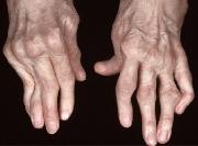 Reumatoidalne zapalenie stawów -portal medyczny