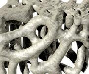 Osteoporoza -portal medyczny