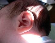 Przewlekłe zapalenie ucha środkowego -portal medyczny