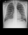 337e74b7a0a2efe15900f20ca68847c829be6449.jpg - Kaszel od miesiąca, 3 antybiotyk z kolei, zatkany nos