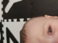 5aa0344f9a591a8eec7fa99f86881f131230ff95.jpg - Zmiany skórne u niemowlaka