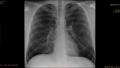 841b5cf38fe5f3d997502660018dbe2ec77ed0fc.jpg - Analiza wyników badań TK płuc, stłuszczenie wątroby, osoba paląca