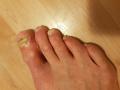 894317287c1844f7b25c05d55e14ec30b72a1717.jpg - Przyjmowanie leku Orungal na grzybicę i operacja kolana