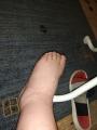 b0d81592eb02c9bea941fb45ad89b8ffac0378c6.jpg - Opuchlizna nóg i ciastowatość