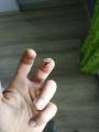 ff2270ce942c85b66bc7362176c82768deeb99c0.jpg - Gojenie rany zmiażdonej opuszki palca