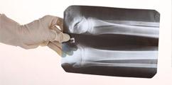 Ortopedia - forum medyczne pytania do lekarzy