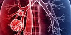 Onkologia - forum medyczne pytania do lekarzy