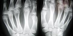 Reumatologia - forum medyczne pytania do lekarzy